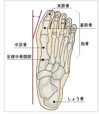 外反母趾の骨格
